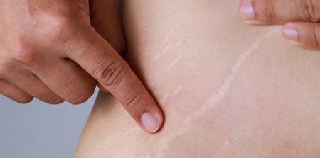 روش های موثر برای درمان ترک های پوستی